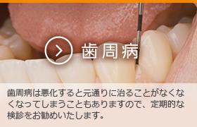 歯周病 歯周病は悪化すると元通りに治ることがなくなくなってしまうこともありますので、定期的な検診をお勧め致します。